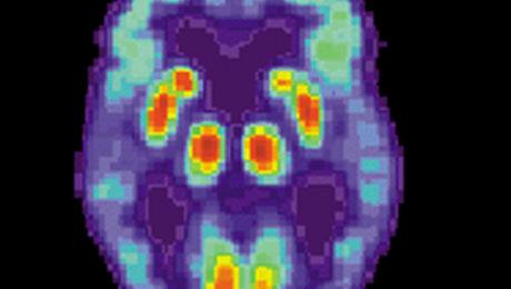 Choroba mózgu